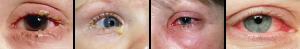 pink eye comp
